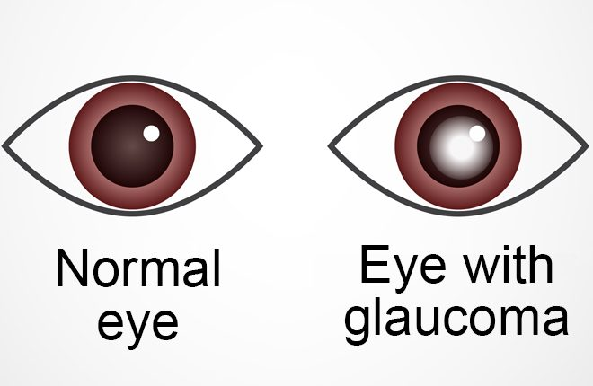 Fii glaucOm cu mine